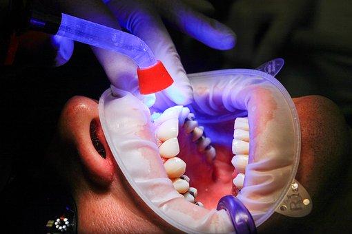 רופאי שיניים הכי מומלצים בבת ים